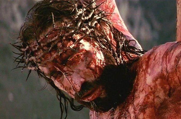 caracteristicas de la sangre de jesus que produjo la corona de espina